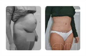 abdominoplastia-secuela-embarazo_1b