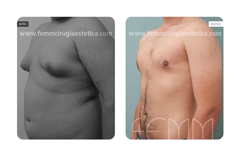 Fotografías antes y después de una cirugía correctora de ginecomastia; y de un trasplante capilar mediante técnica FUSS (FollicularUnitStripSurgery) o Microinjerto de la Tira.